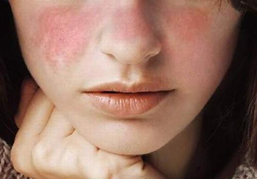 Mengenal Penyakit Lupus Dan Dampaknya