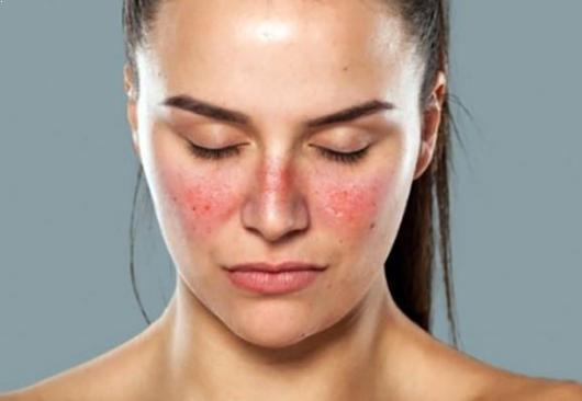 Mengetahui Penyebab Penyakit Lupus