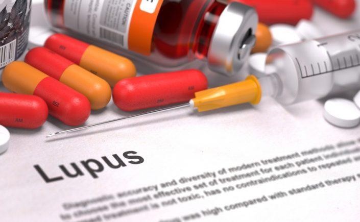 Penanganan Untuk Penderita Lupus
