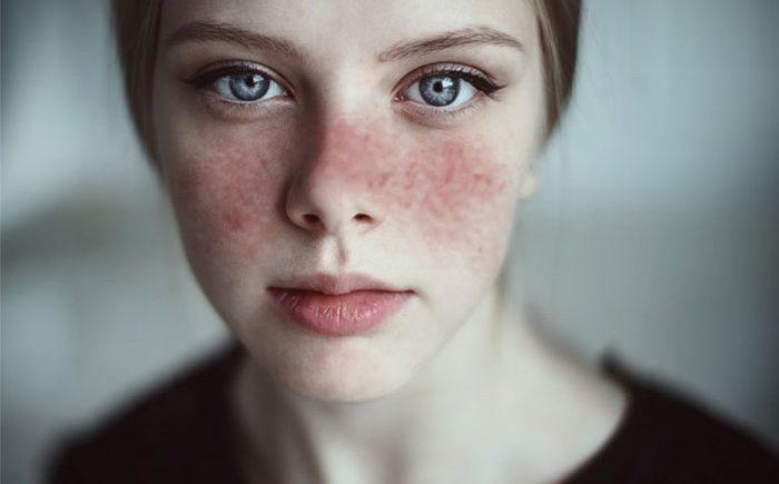 Di Cina, Pengidap Lupus Menjadi Penyebab Kematian Terbesar