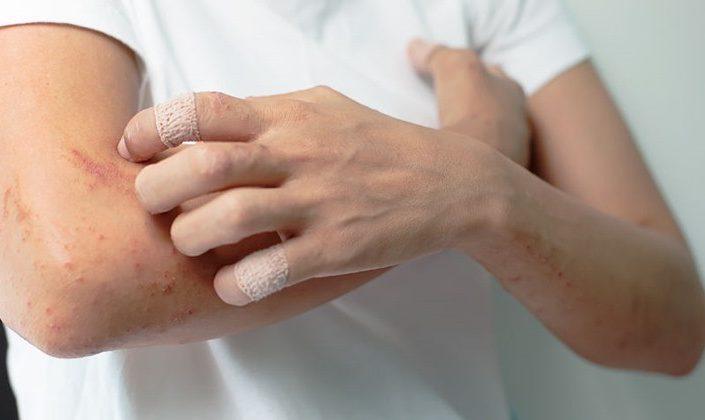 Alarm Imun Kulit Bisa Menjelaskan Ruam Pada Pasien