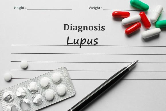 Aurinia Lakukan Uji Tahap 3 Voclosporin untuk Lupus Nephritis