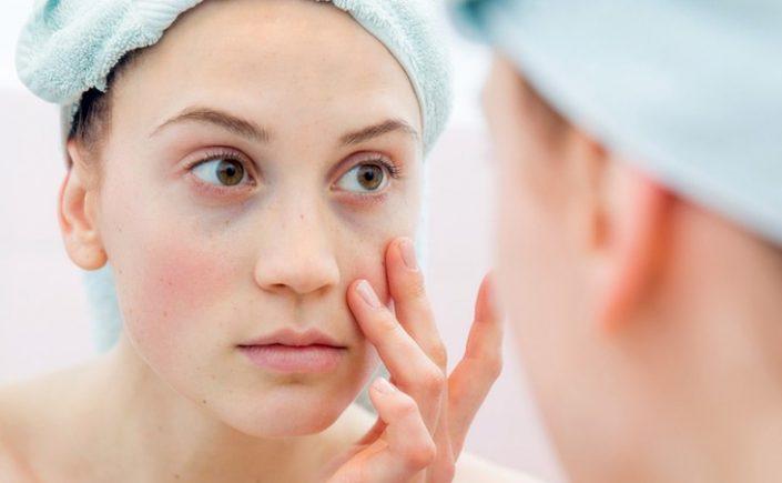 Tacrolimus Terapi Aman Untuk Penderita Lupus